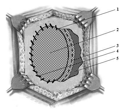 Схема операции при вентральной